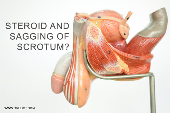How Steroid Use Leads To Sagging Of Scrotum? Image