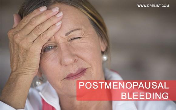 Postmenopausal Bleeding Image