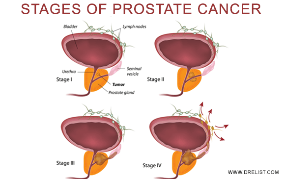 Stages Of Prostate Cancer Image