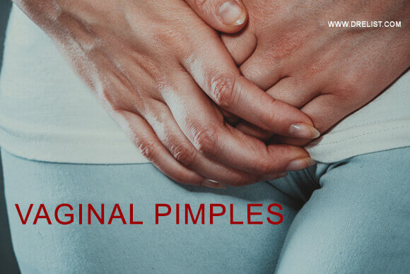 Vaginal Pimples – What Should You Know About It? Image