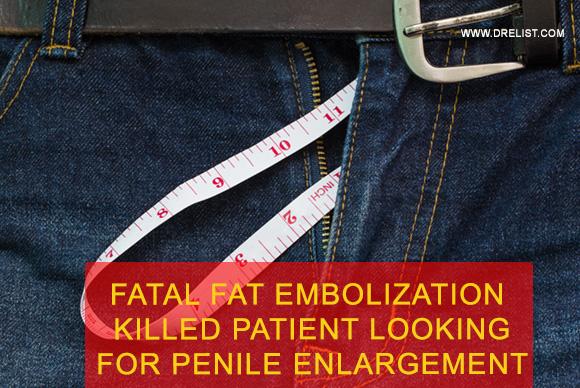 Fatal Fat Embolism Killed Patient Looking For Penile Enlargement Image