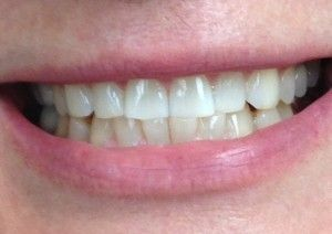 Teeth Bleaching and Whitening After Patient1