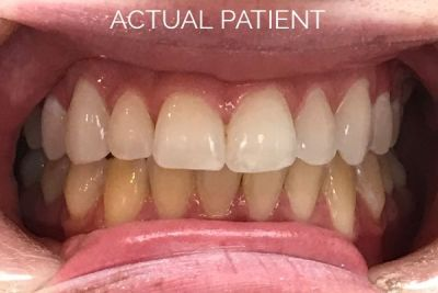 teeth whitening cosmetic dentistry