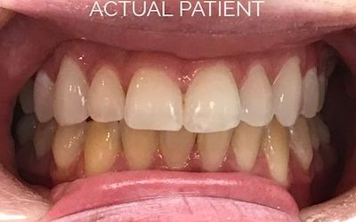 How effective are teeth whitening toothpastes?