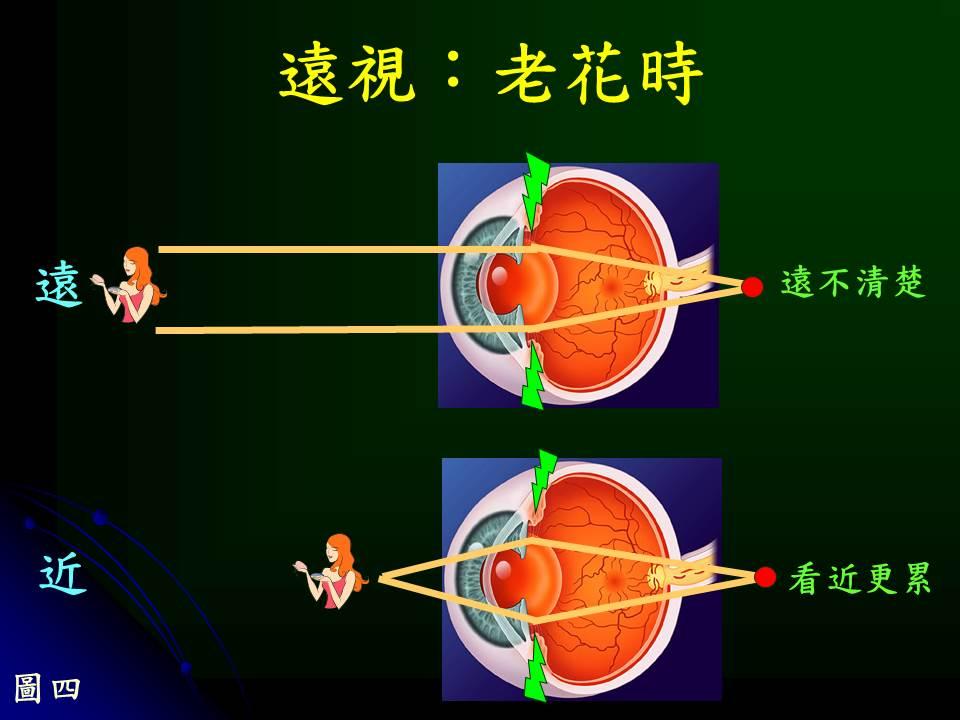近視性老花 v.s 遠視性老花 - 陳瑩山眼科醫師醫療網-黃斑部專家│近視老花眼│白內障│飛蚊癥│糖尿病眼底病變