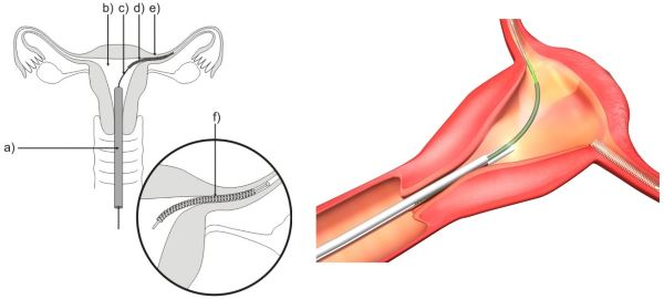 Anticonceptivo Essure