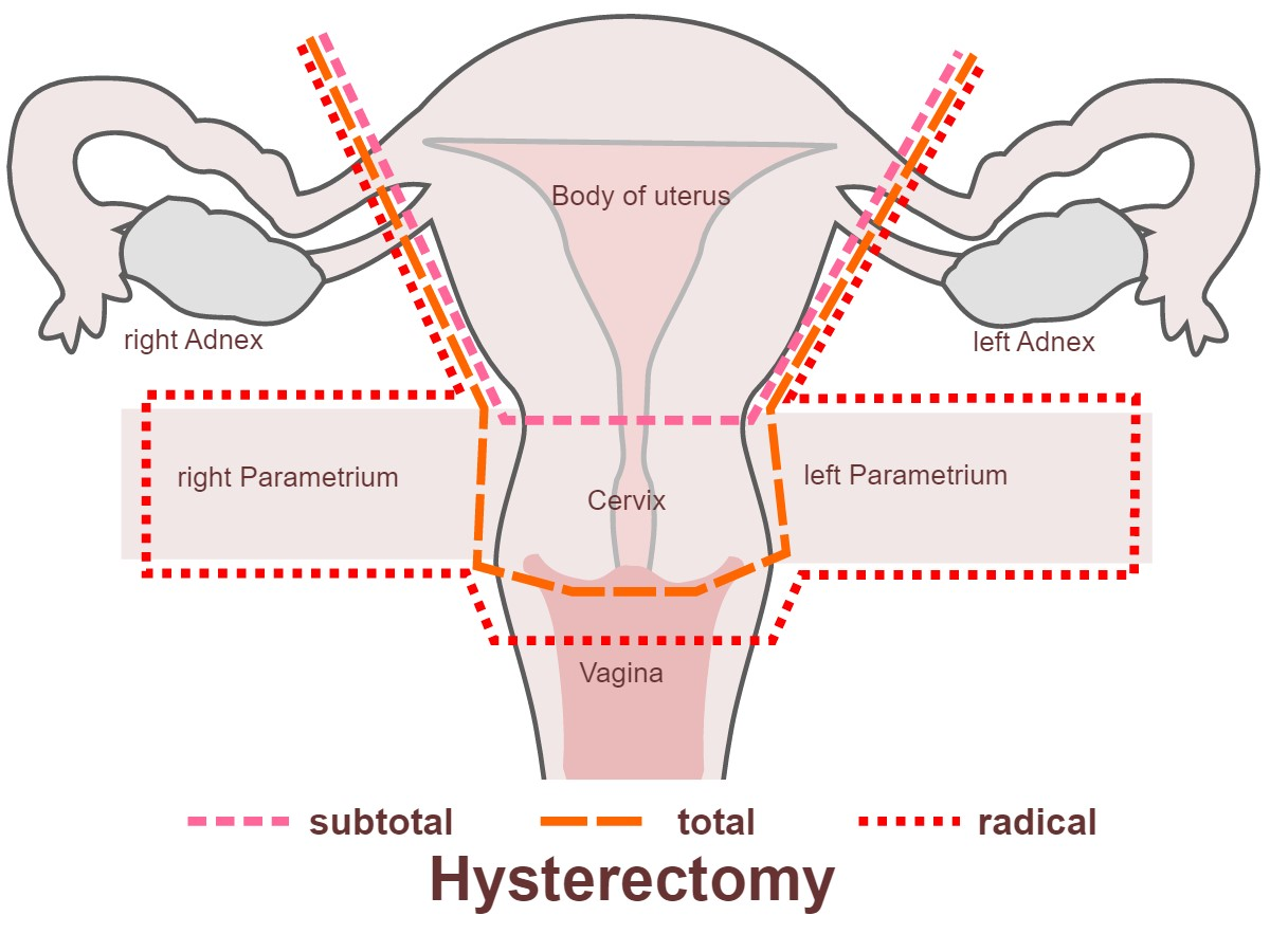 micción frecuente después de la histerectomía abdominal