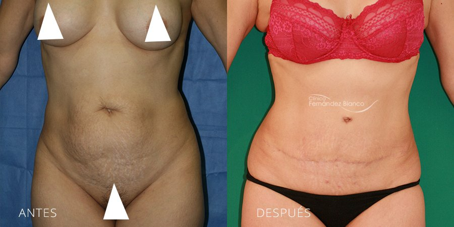 Abdominoplasty Case 5