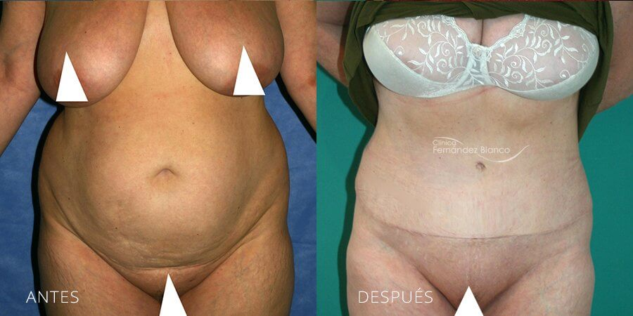 Abdominoplasty Case 11