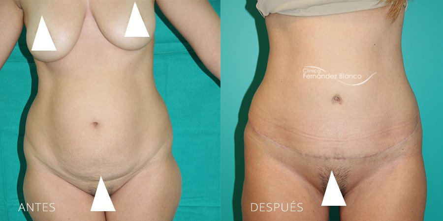 Abdominoplasty Case 16