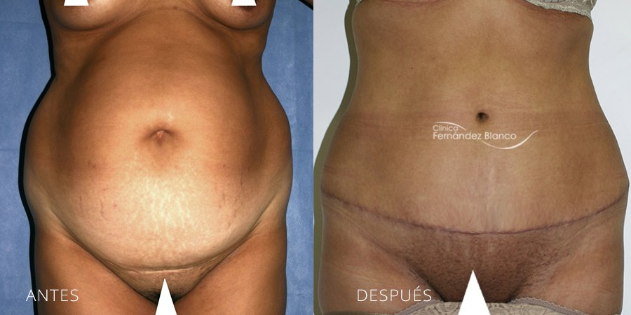 Abdominoplasty Case 14