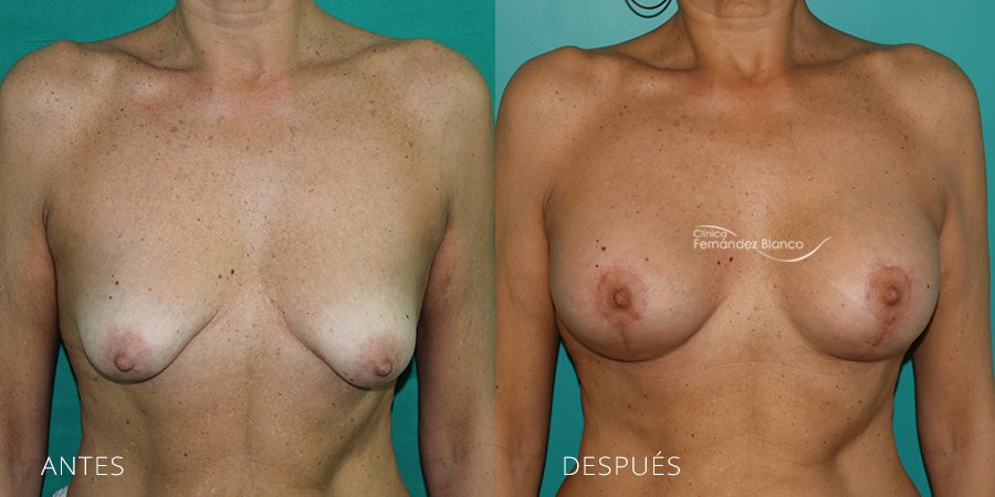 Mastopexy – lifting Case 1