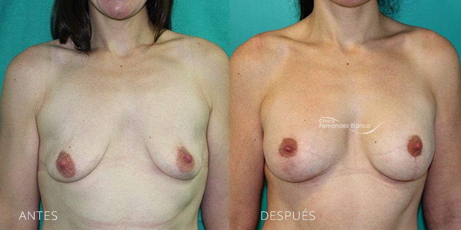 Mastopexy – lifting Case 2