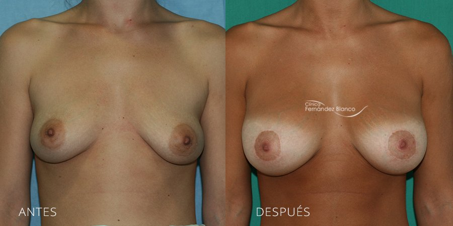 Mastopexy – lifting Case 8