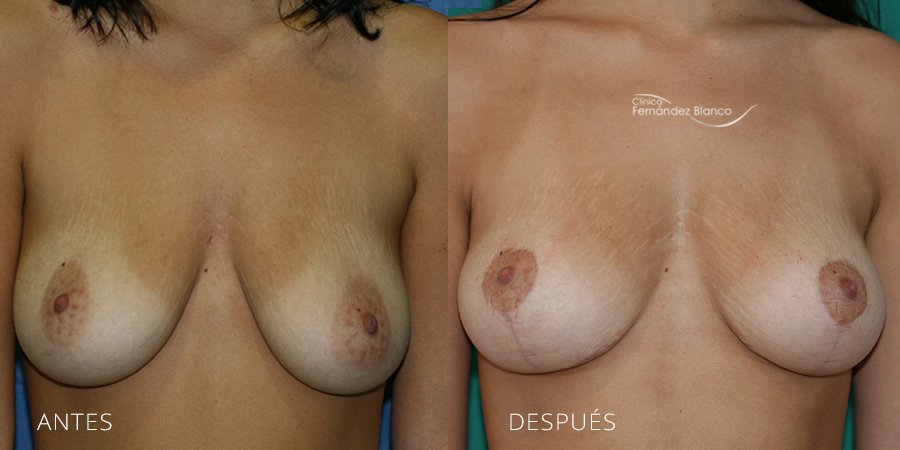 Mastopexy – lifting Case 3