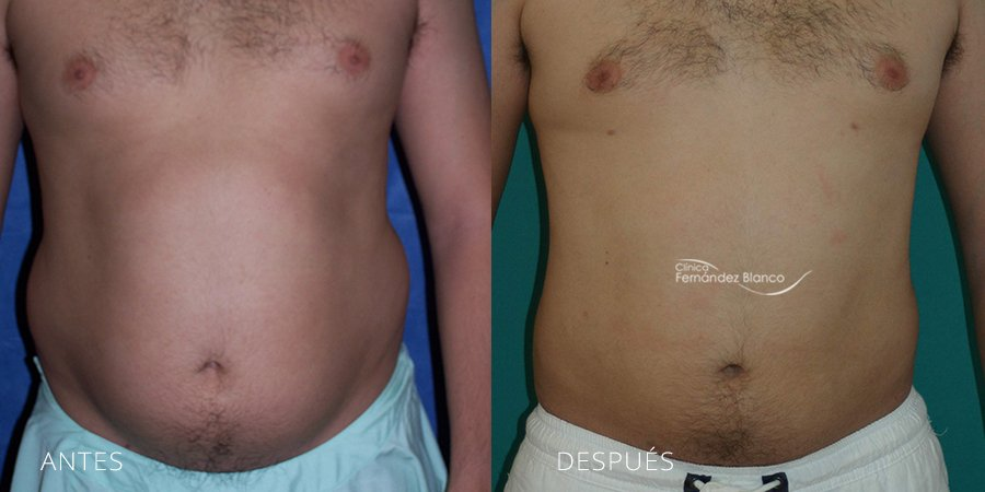 Liposuction Case 2