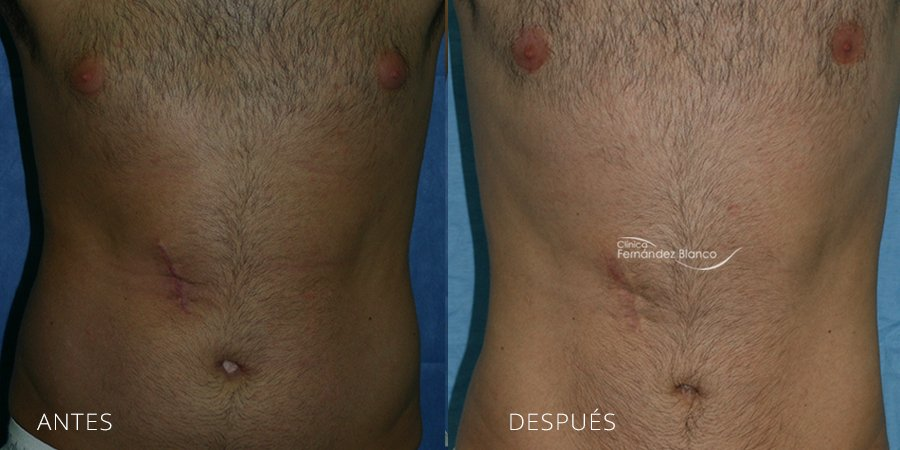 Liposuction Case 3