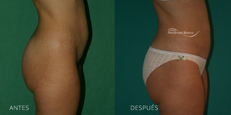 Liposuction Case 4