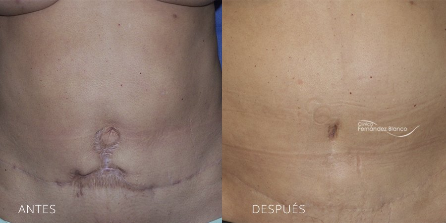 Secondary or restorative abdominoplasty 1
