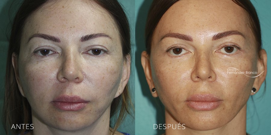 Lifting Facial Secundario Caso 1