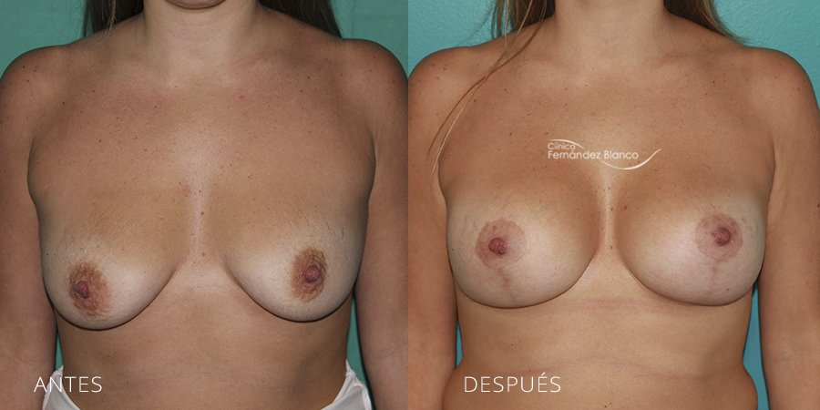 Mastopexy – lifting Case 4