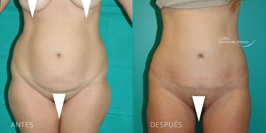 Abdominoplasty Case 1