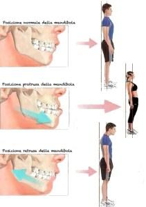 Malocclusione e postura