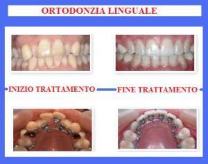 ortodonzia-7