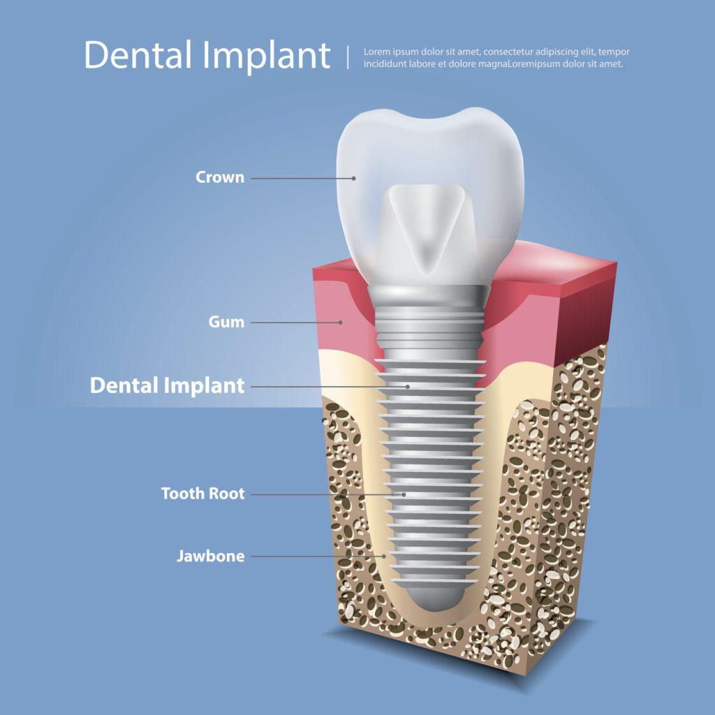 3 benefits of dental implants