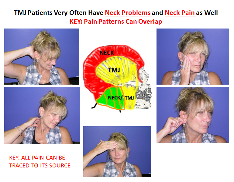 TMJ-related-neck-pain