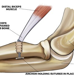 image result for picture of distal bicep tear [ 1429 x 966 Pixel ]