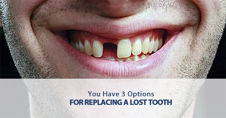 3 Options for Replacing a Lost Tooth  Aesthetic Dentistry