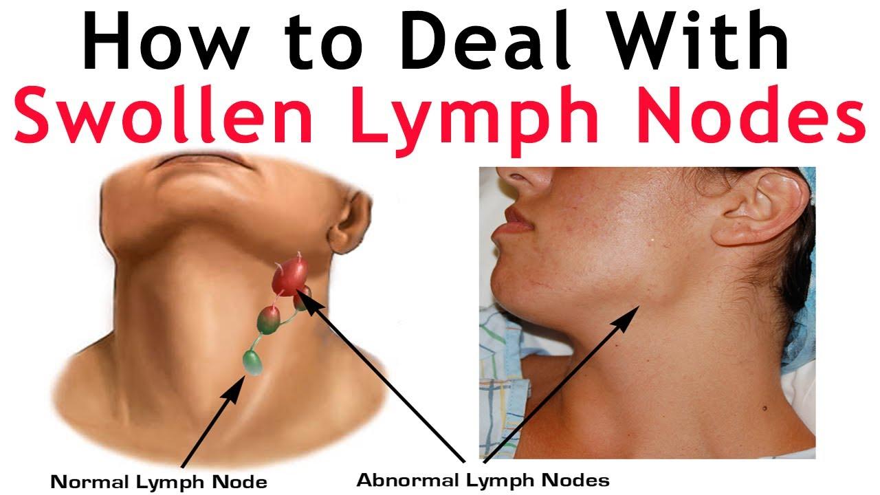 LYMPHNODES