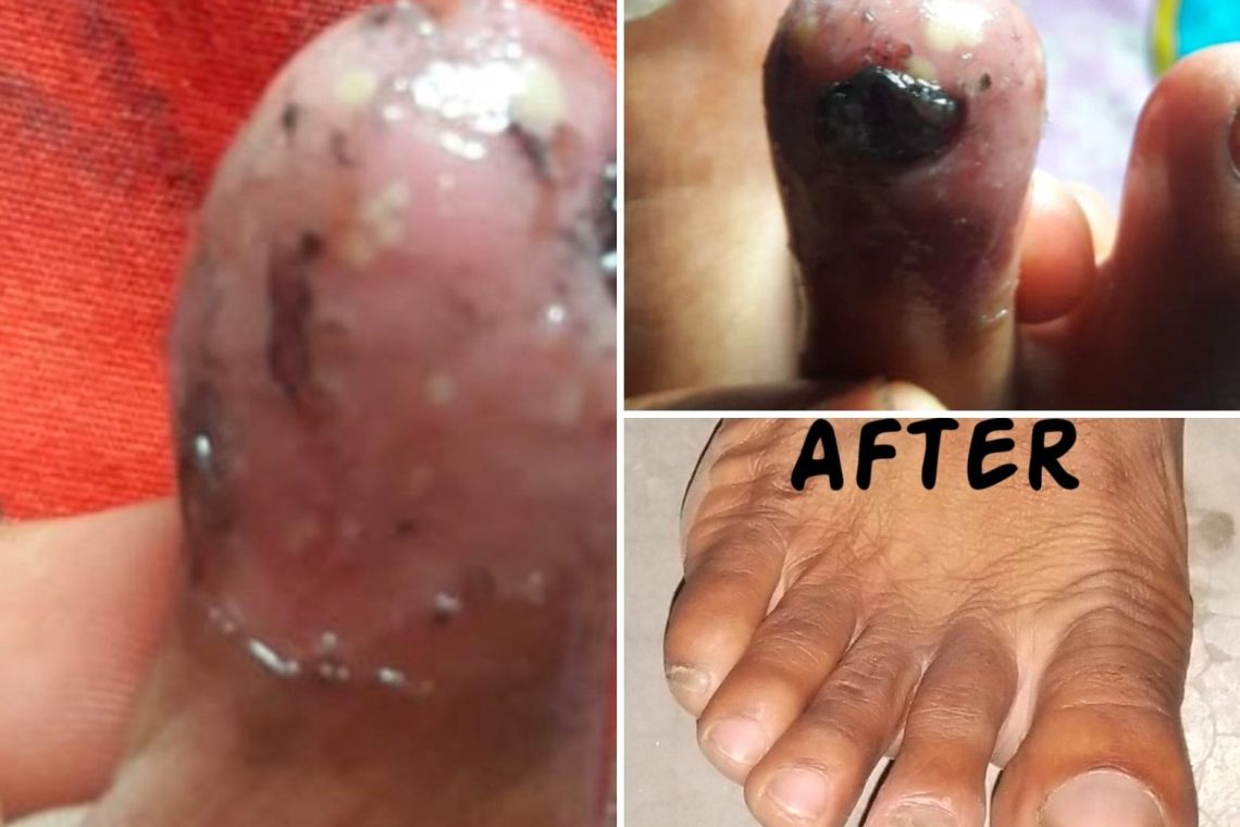 नीतीश कुमार ने तीन महीने पहले हमारे क्लिनिक का दौरा किया था, जिसमें त्वचा(skin) की बड़ी बीमारी थी जिसके परिणामस्वरूप उनके नाखून त्वचा की समस्या के कारण क्षतिग्रस्त हो रहे थे। अब वह पूरी तरह से अपने रोग से उबर चुके हैं। #skin #skindisease #drpkgyan #drgyan #doctor #homeopathy #best #homeopathic #hospital #clinic #homeopath #homoeopathic #bihar #patna #hajipur Visit us:- www.drgyanhomoeo.com