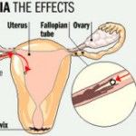 What is Chlamydia & its signs and symptoms