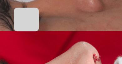 operasi plastik hidung di jakarta