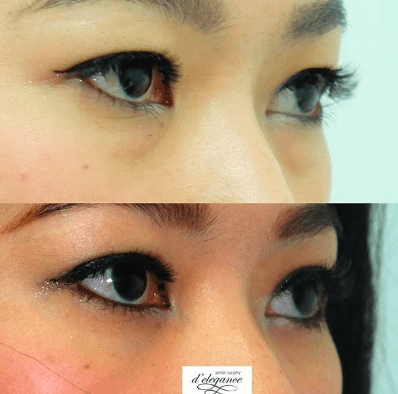 hilangkan kantung mata tanpa bekas (blepharoplasty)