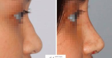 Memperbaiki hidung filler dengan tulang rawan, video penjelasan