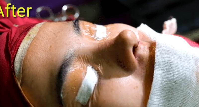 drhendriandreas operasi hidung