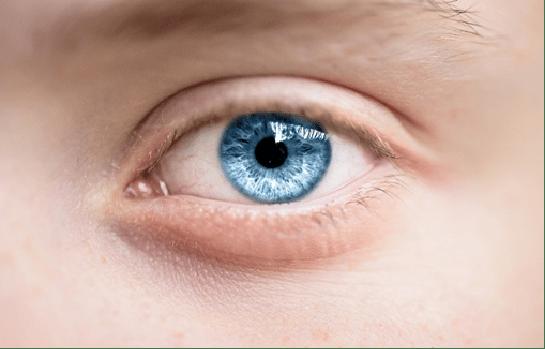 Atasi Kelopak Mata Kendur Dengan Blepharoplasty