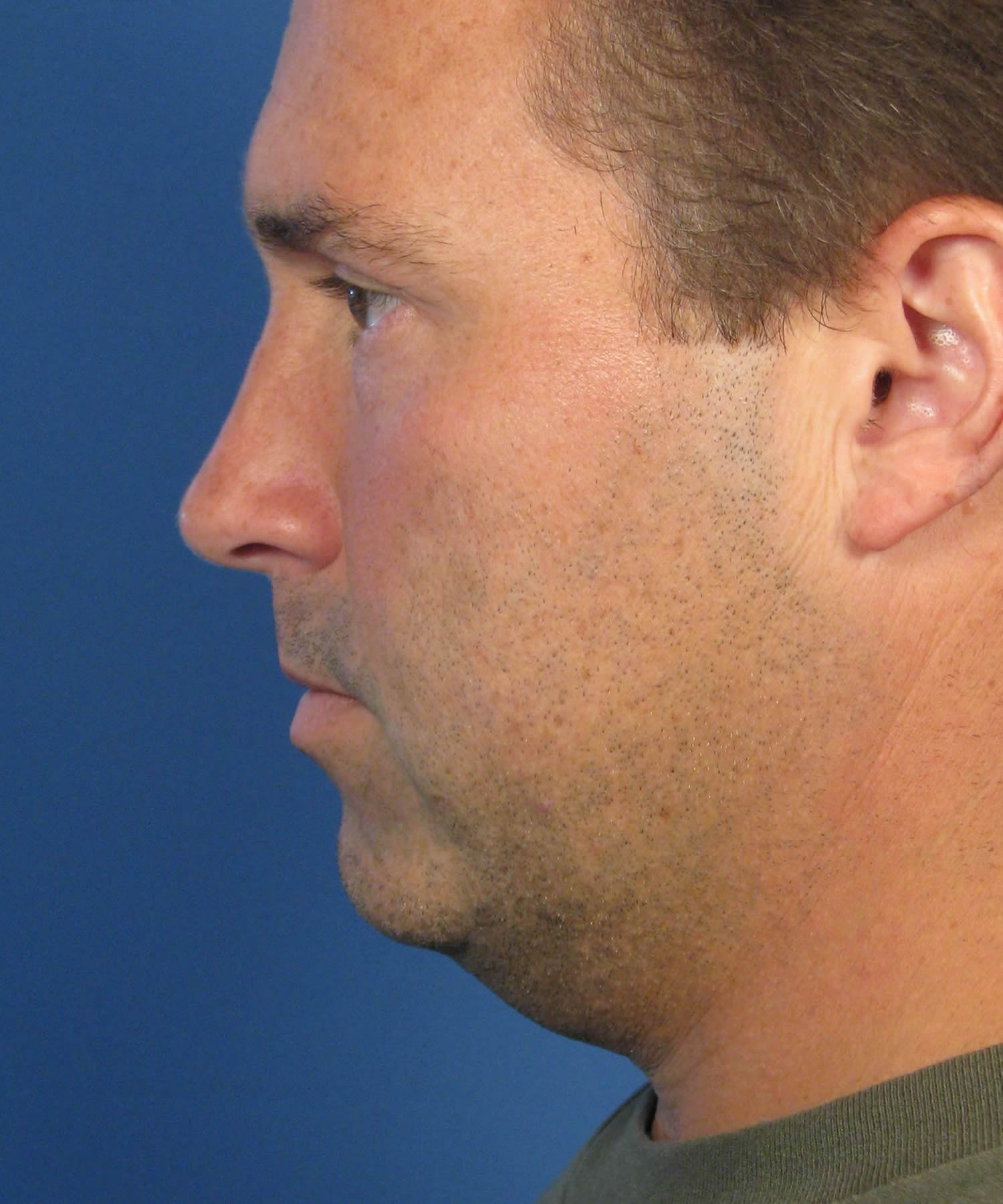 Combining Chin Implant with Platysma Muscle Tightening