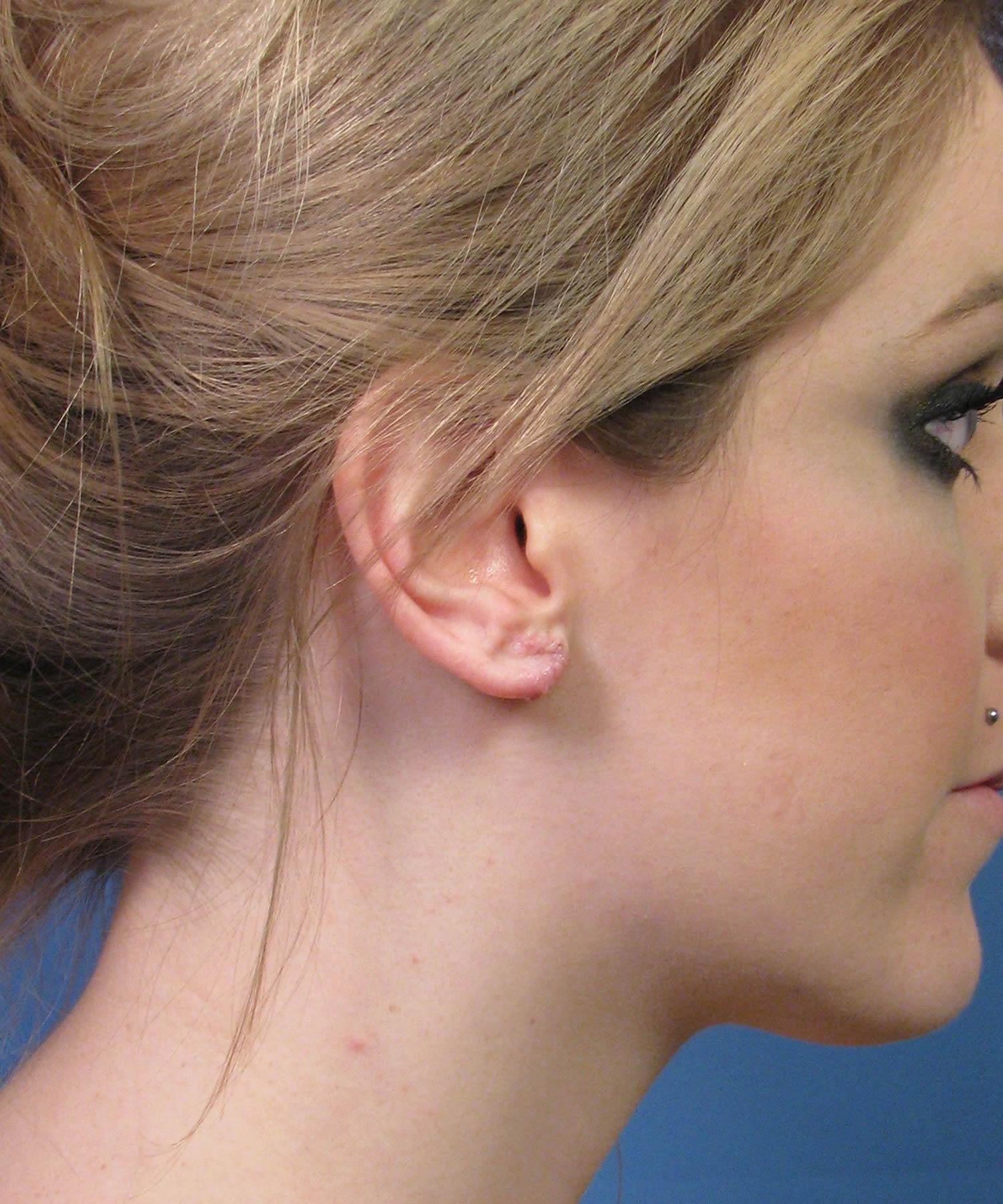 Gauge Piercing Repair Example Dr John Hilinski Expert