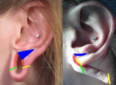 Large Gauge Earring Repair Correction Case Study San Diego Ca