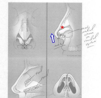 RhinoDiagramPtosis