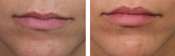Permanent Lower Lip Advancement San Diego Ca