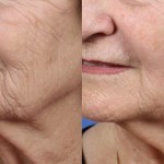 Restylane filler injection