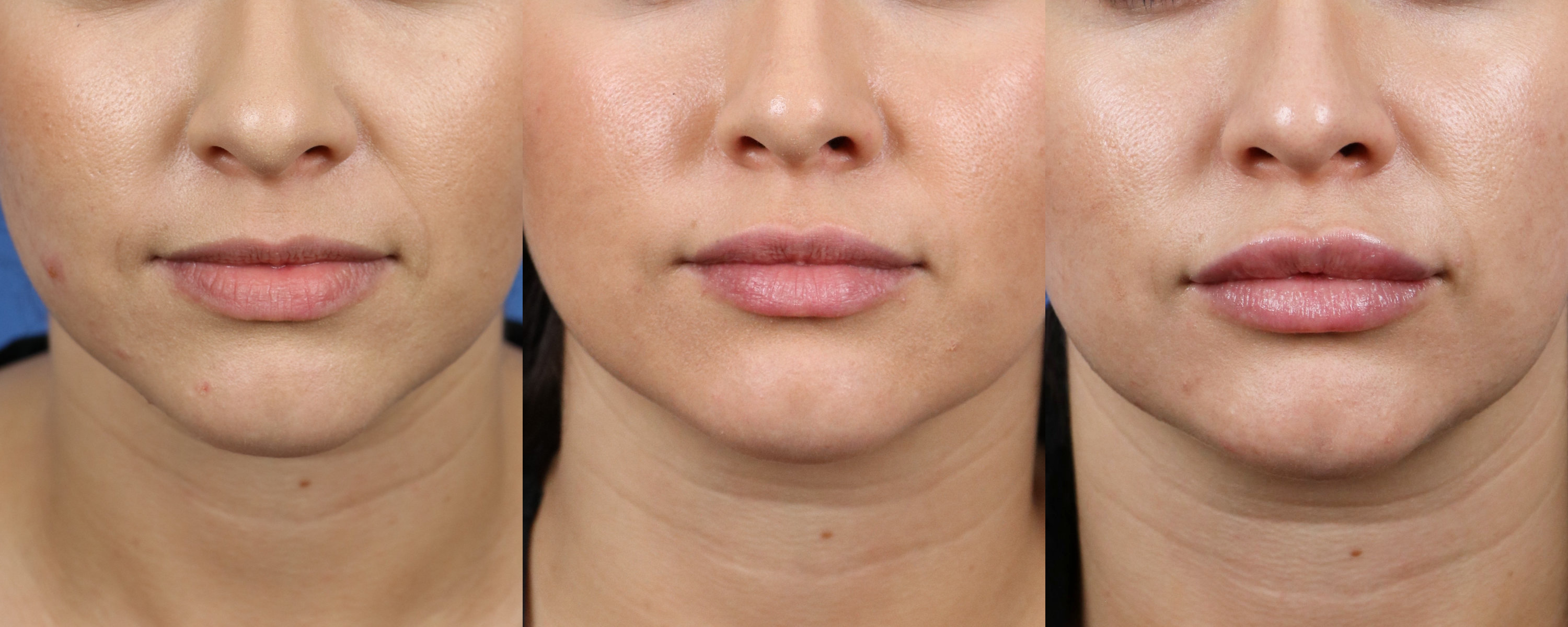 Restylane Juvederm Bigger Poutier Upper and Lower Lips