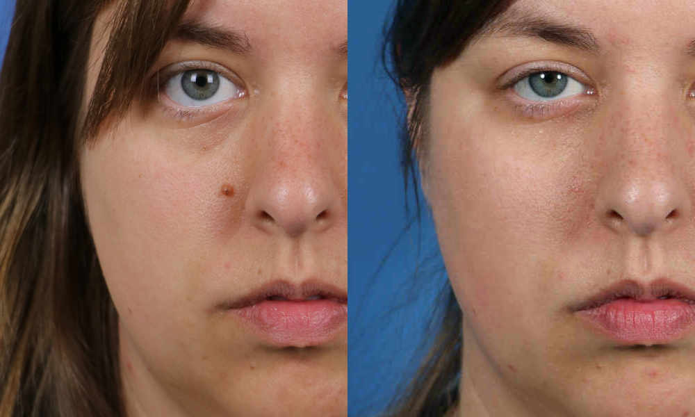 Regret, Facial mole removal cost sorry, that