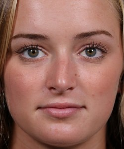 Teenage Crooked Nose Repair