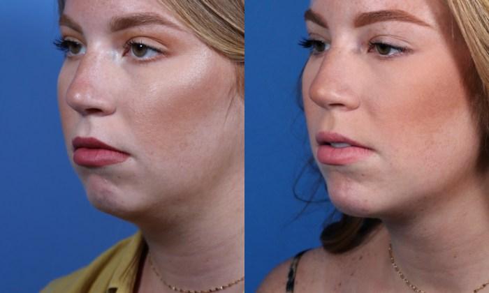 Radiesse Chin Augmentation in San Diego, CA
